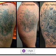 tattoo removal sydney laser fading to cover
