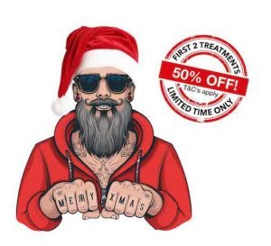 young tattoo removal santa sale