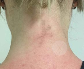a neck tattoo removal after image