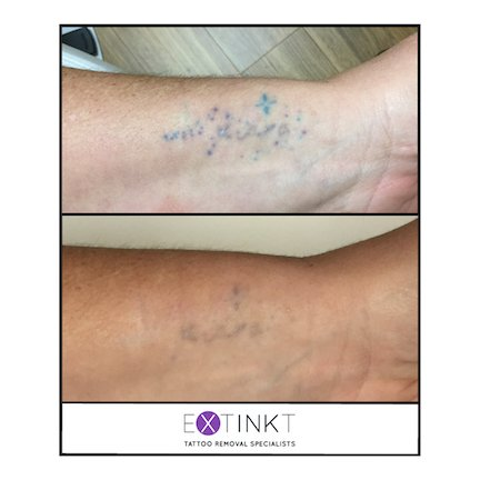 colour tattoo removal on the wrist