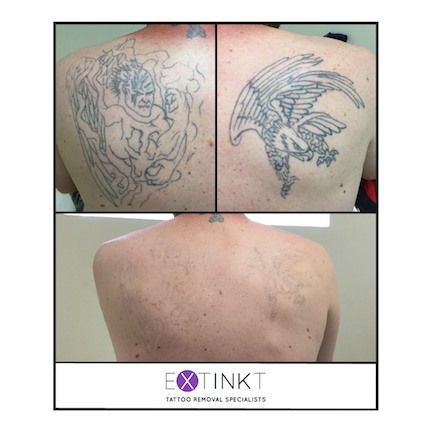 progress images of large back tattoo removal