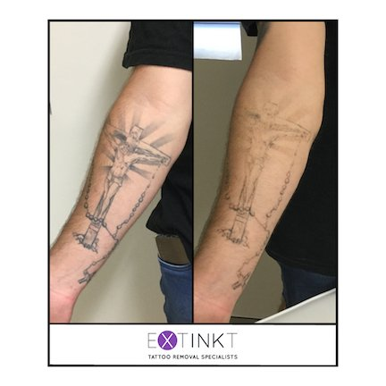 progress image of tattoo removal on a forearm
