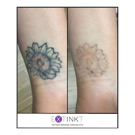 tattoo removal progress image of sunflower