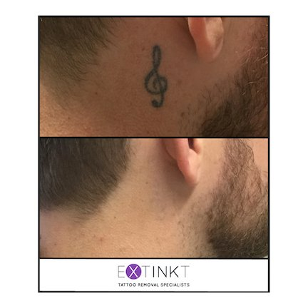 image of almost completed tattoo removal
