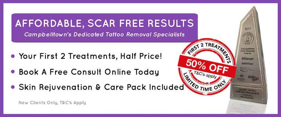 image for tattoo removal offer on website