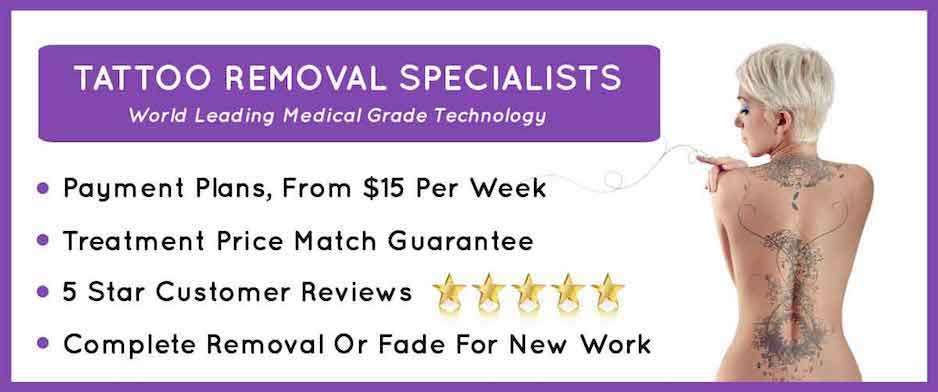 image for our tattoo removal website with 5 stars