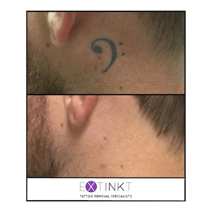 complete tattoo removal of neck musical note