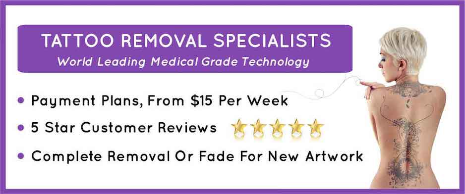 tattoo removal sydney blonde and reviews