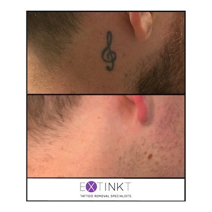 completed tattoo removal of musical note