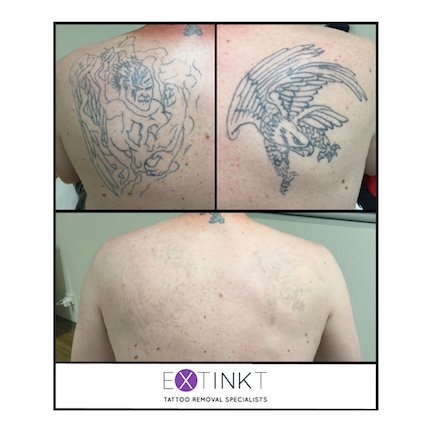 progress tattoo removal image of back piece