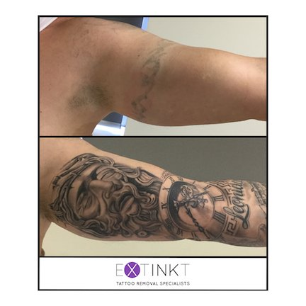 tattoo removal cover up with new jesus art
