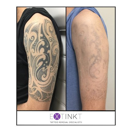 tribal tattoo removal before and after image
