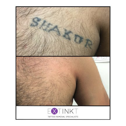 Laser Tattoo Removal Sydney | Campbelltown's Specialist Clinic