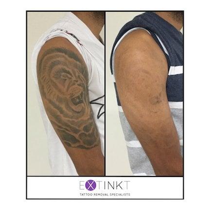 progress shot of tattoo removal