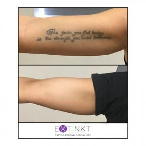 completed tattoo removal image
