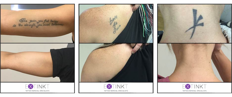 collection of tattoo removal results