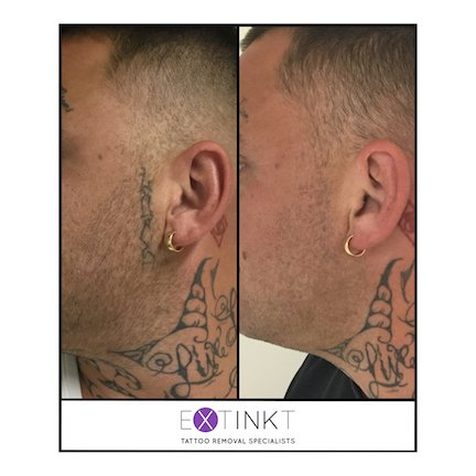 almost complete tattoo removal on mans face