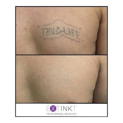 thug life tattoo removal procedure