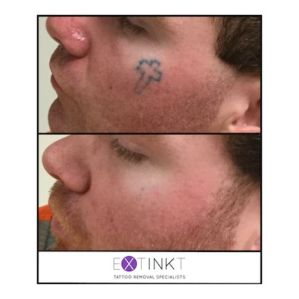 face tattoo removal image