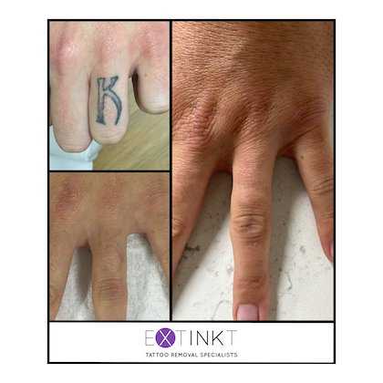 example of finger removal
