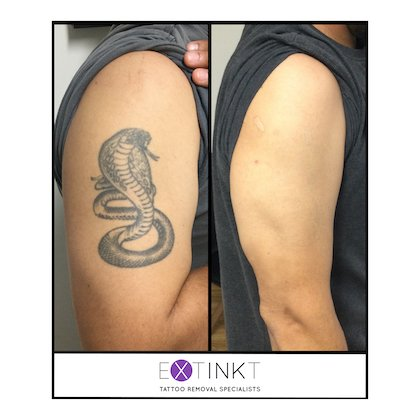 completed snake tattoo removal